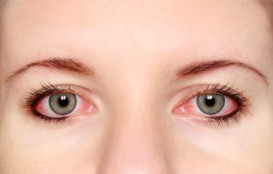 shutterstock 147880181 300x191 - Conjuntivitis alérgica, un proceso al que prestar especial atención