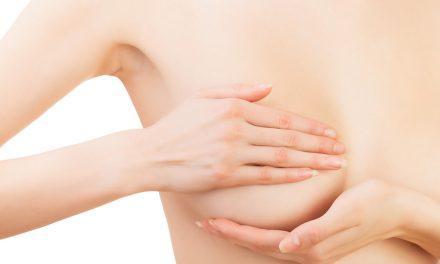 Cómo hacer una autoexploración mamaria