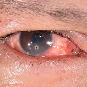 shutterstock 185722103 300x300 - No pierdas de vista al glaucoma