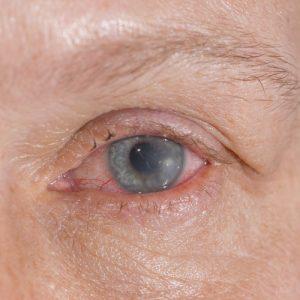 shutterstock 172880108 300x300 - Cuida tus ojos; el cuidado de las lentillas