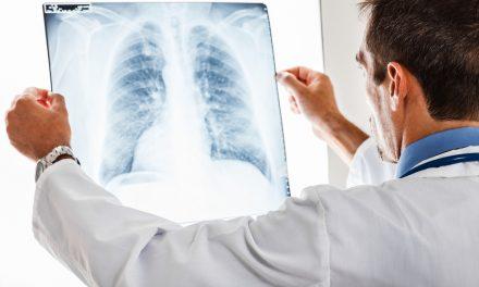 La necesidad de conocer la Fibrosis Pulmonar Idiopática