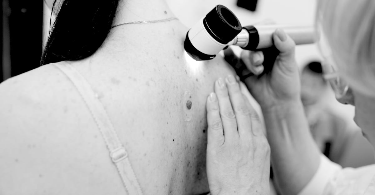 ¿Qué es el melanoma, cómo se puede prevenir?