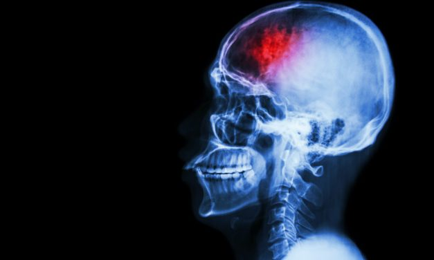 La Federación Española de Daño cerebral pide una estrategia nacional para los pacientes y un censo de personas afectadas