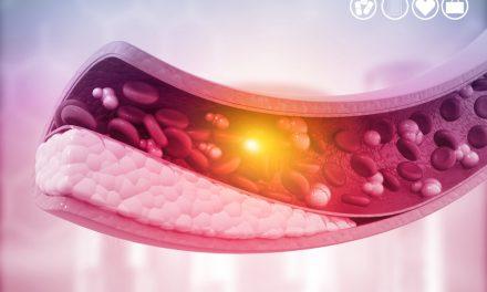 «Salta por la trombosis», campaña de la SETH en su el Día Mundial de la enfermedad