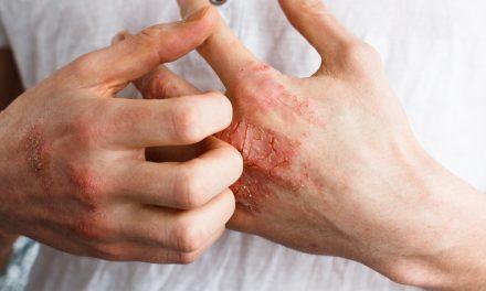 Día Mundial de la Psoriasis: Encuesta NEXT, la enfermedad en datos