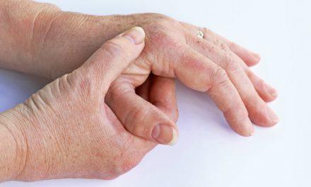 La posible desfinanciación de un medicamento para la artrosis afectaría a miles de pacientes, advierten desde la Fundación Española de Reumatología