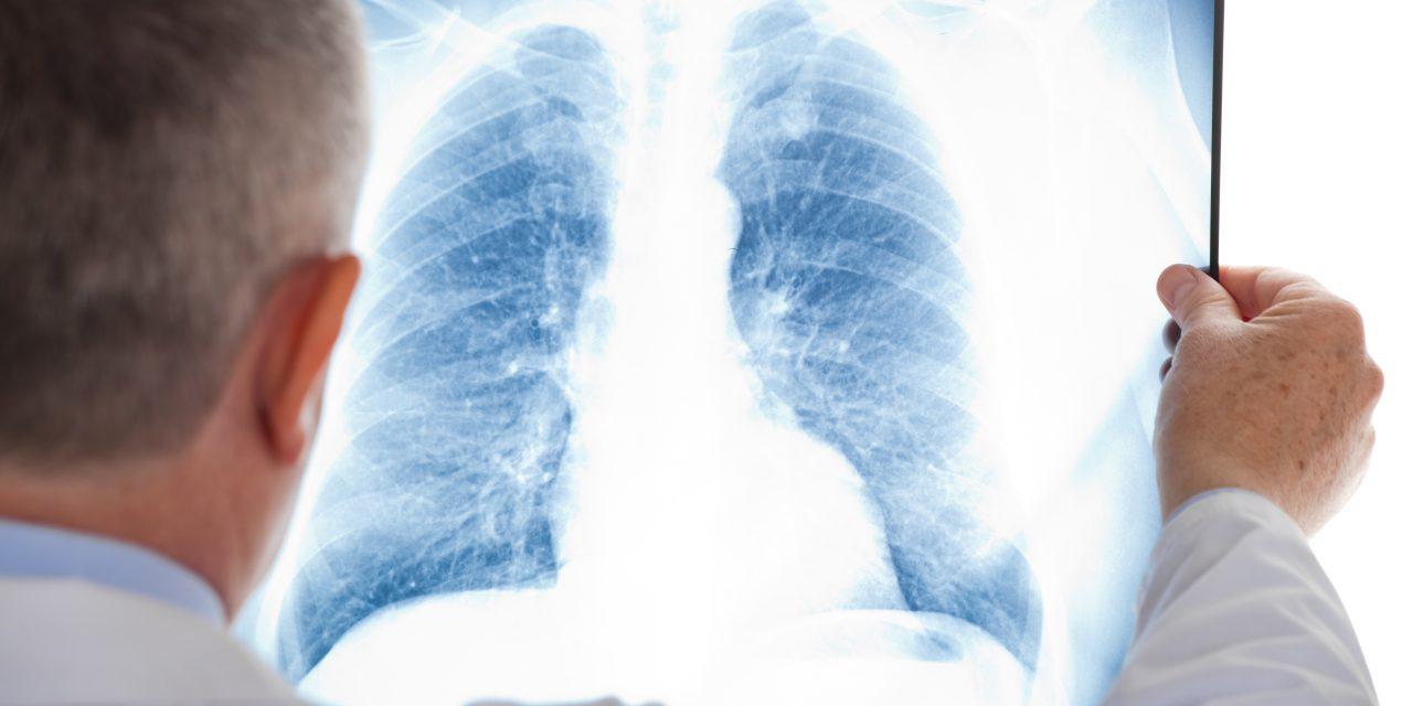 La Fundación Ricky Rubio y Novartis se unen en la prevención y concienciación social del cáncer de pulmón