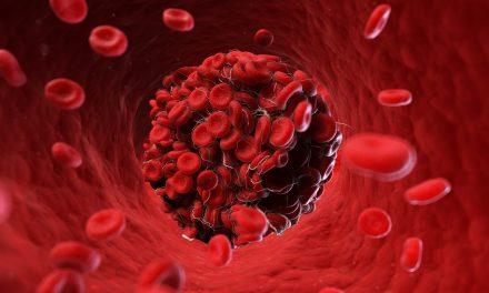 FEDHEMO desarrolla un proyecto para visibilizar la púrpura trombocitopénica trombótica adquirida, una trastorno de coagulación poco frecuente