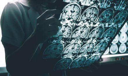 La Federación de Asociaciones de Familiares de Pacientes de Alzheimer y Otras Demencias de Huelva, celebran un encuentro para analizar el nuevo perfil del paciente