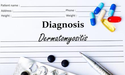La Asociación Nacional de Dermatomiositis Juvenil organiza las I Jornadas de Fisioterapia en Madrid