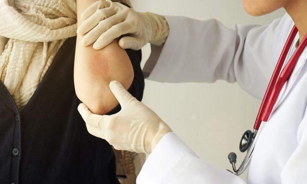 El Hospital Universitario de Toledo pone en marcha talleres multidisciplinares para pacientes con psoriasis