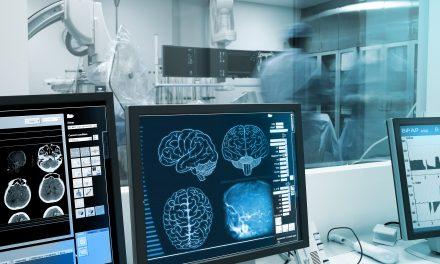 Investigación del Parkinson ¿en qué punto está?
