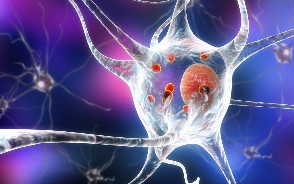 ¿Qué es el Parkinson? Más allá del temblor de manos