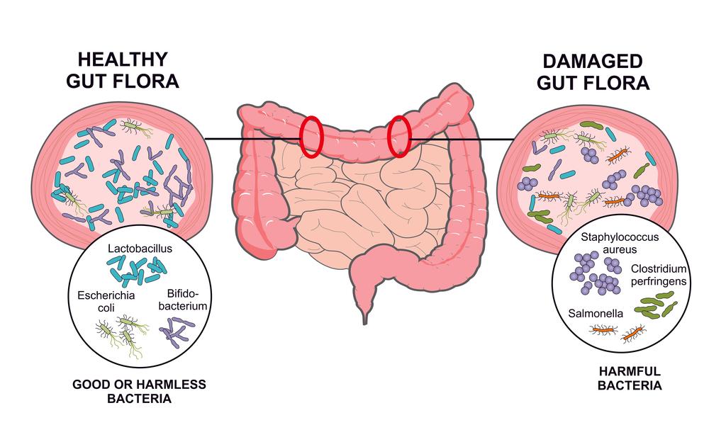 Microbiota Intestinal - ¿Qué es la microbiota intestinal?