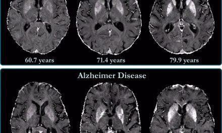 IBM y Pfizer desarrollan un modelo de IA capaz de predecir la aparición de Alzheimer en personas sanas