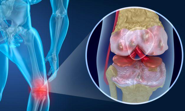 El IV Congreso Internacional de pacientes con Artrosis de OAFI será en Barcelona