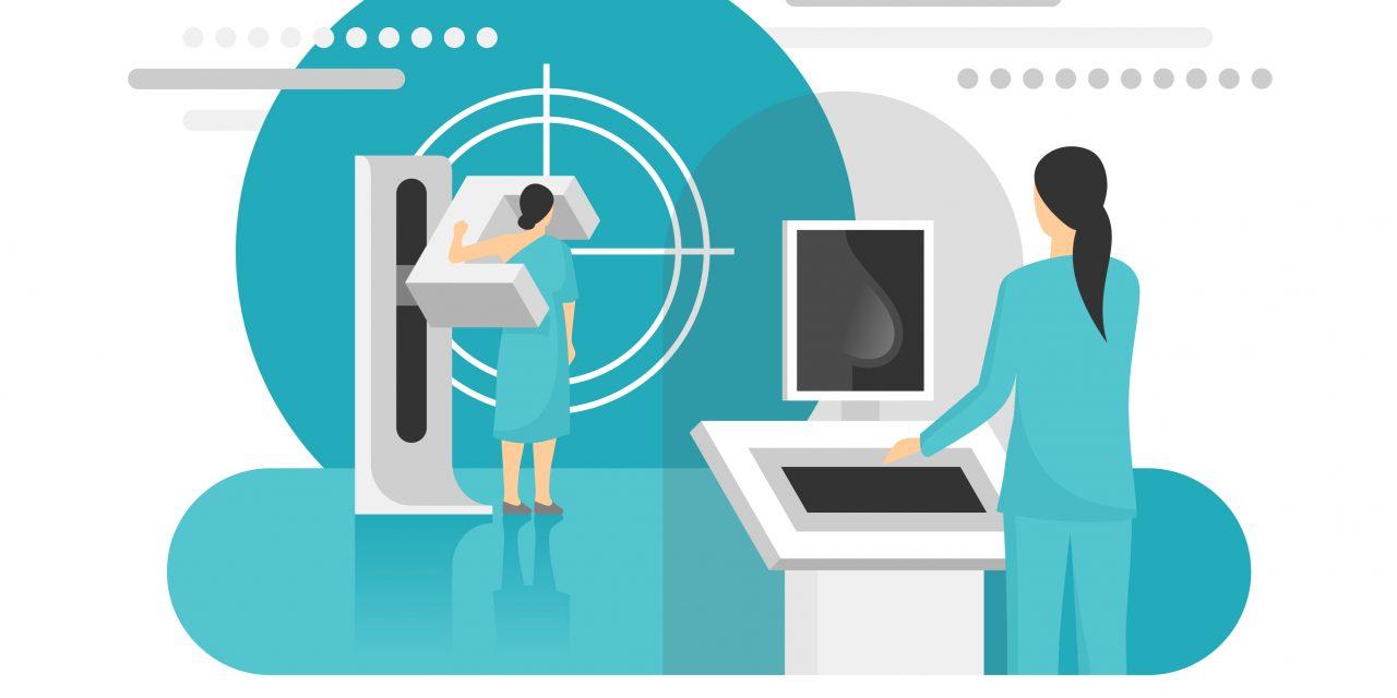 El cribado mamográfico reduce un 35% la mortalidad por cáncer de mama en mayores de 50 años
