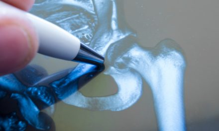 Siete de cada 1.000 habitantes mayores de 65 años en España sufren fractura de cadera