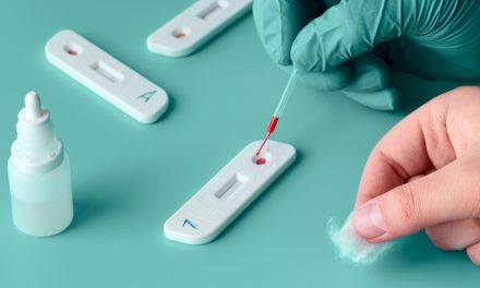 Gobierno y comunidades acuerdan pedir a los médicos que no prescriban las pruebas rápidas de anticuerpos del Covid-19