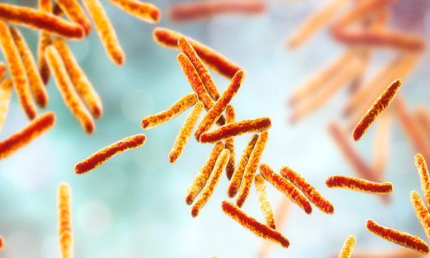 Neumólogos alertan de riesgo de peor atención a tuberculosis por la pandemia de COVID-19