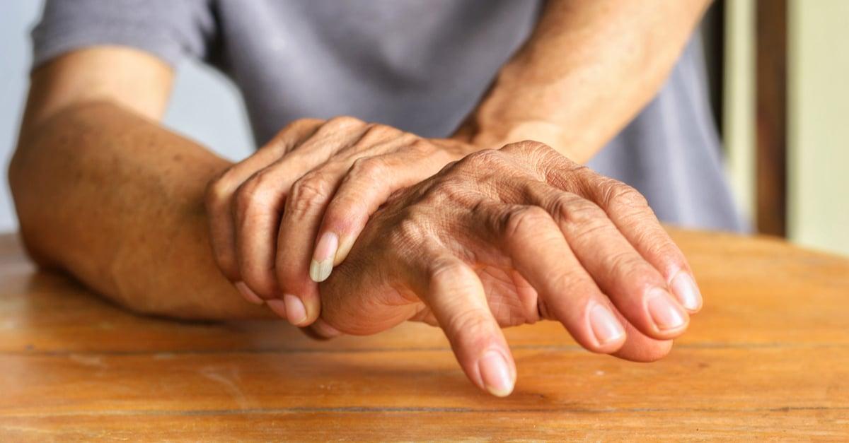 Los pacientes con artritis tienen el SIO de ConArtritis Santiago para informarse