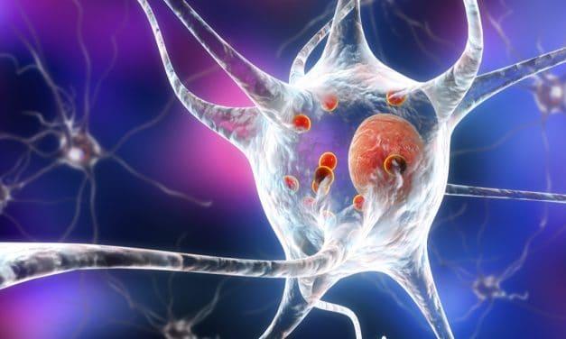 La estimulación cerebral profunda ayuda a mejorar síntomas del Parkinson como la distonía y el temblor esencial