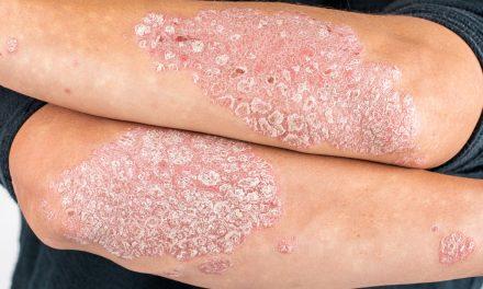 Acción Psoriasis: «la psoriasis es crónica, afecta al 2'3% de la población y no es contagiosa»