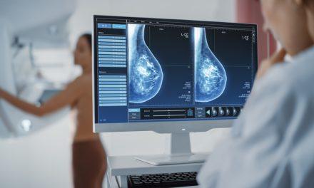 Un estudio demuestra que la irradiación parcial en cáncer de mama disminuye la toxicidad
