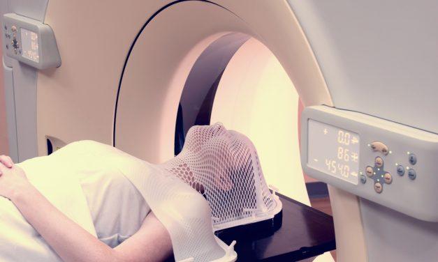 Cada año se detectan en España entre 12.000 y 14.000 casos de cáncer de cabeza y cuello
