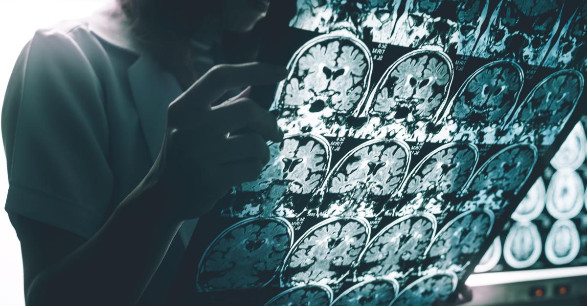 CEAFA reivindica la importancia del diagnóstico precoz. Día Mundial del Alzheimer 2021