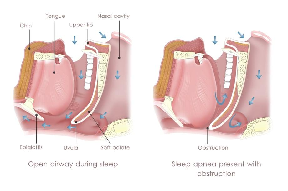 shutterstock 132163337 - La apnea del sueño aumenta un 45% en los últimos diez años, según otorrinos y dentistas