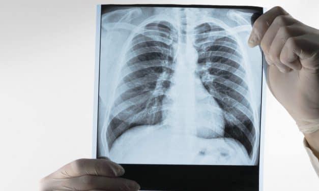La inteligencia artificial podría ayudar a diagnosticar el cáncer de pulmón un año antes